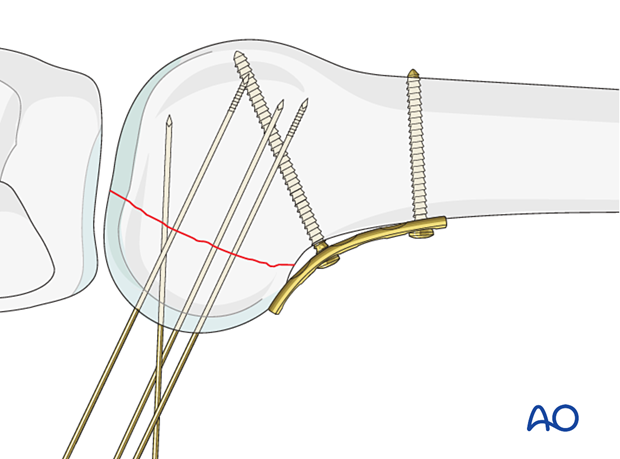 Guide-wire insertion