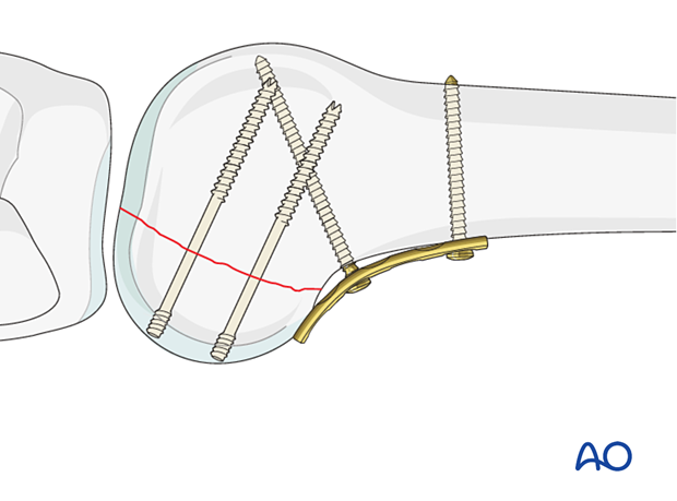 Insertion of headless compression screws