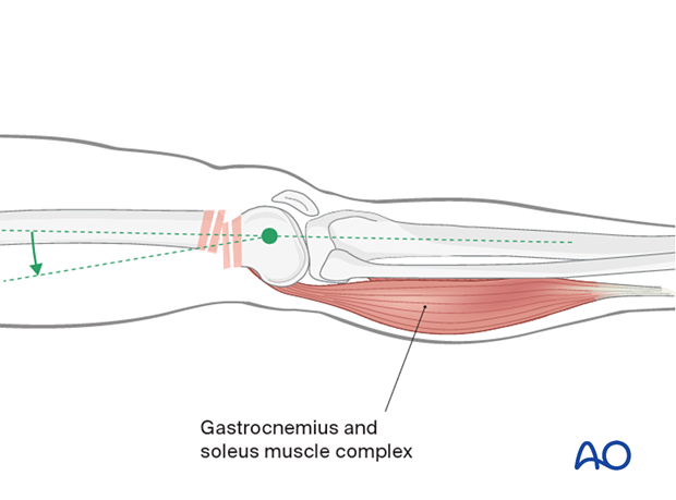 Muscle pull causing displacement of distal segment