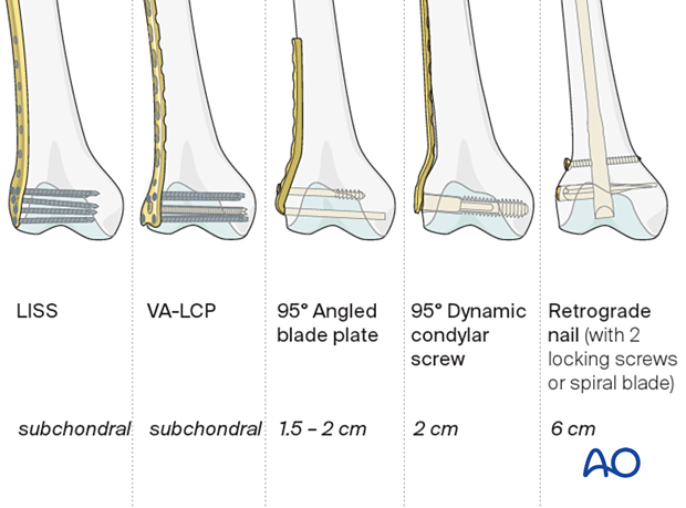 Various implant types