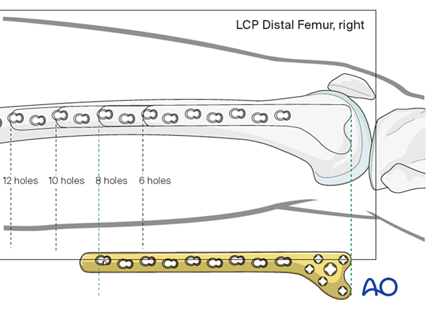 Determining the required length of the Condylar LCP