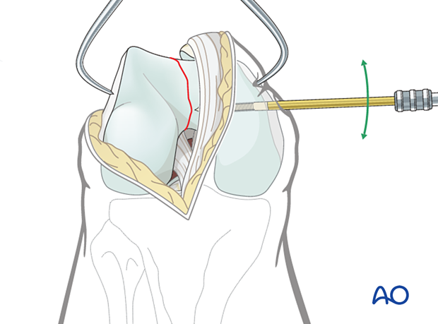 Reduction of the articular block