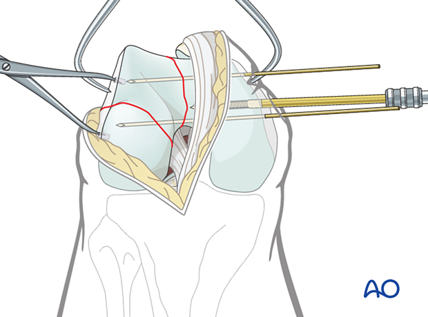 Insertion of K-wires in the distal articular block