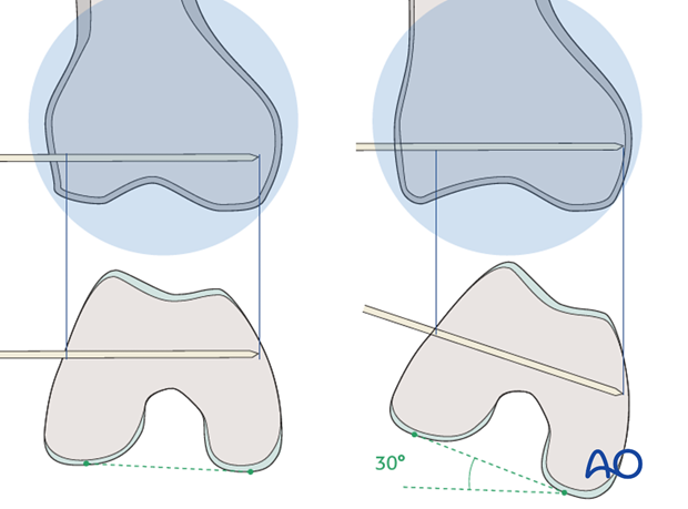 Pitafall – distal femur tapers form the posterior to the anterior
