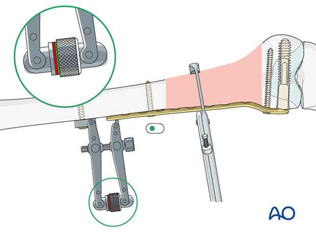 Use of articulated tension device