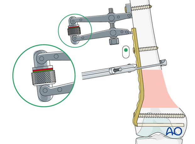 Use of the articulated tension device