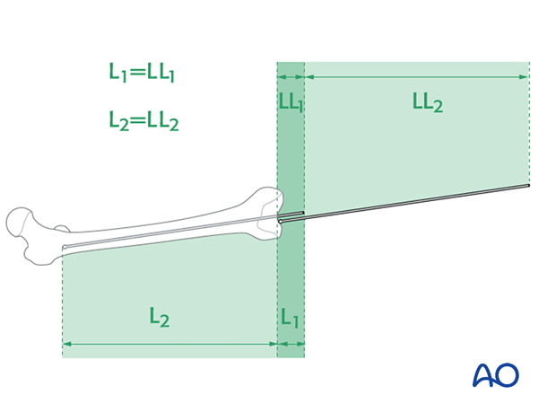 Determination of nail length using the guide wire