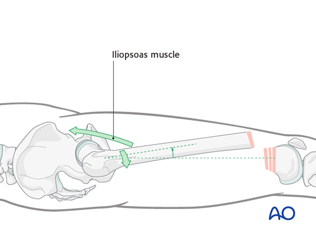 Pull of the iliopsoas muscle