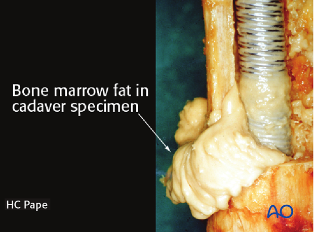 Image demonstrating fat extrusion