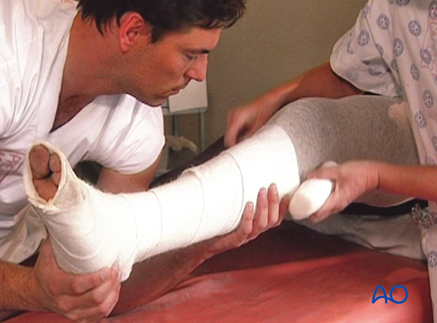 Application of cast padding along the tibia