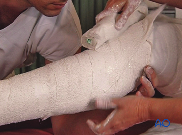 Application of additional plaster bandage over the proximal tibia