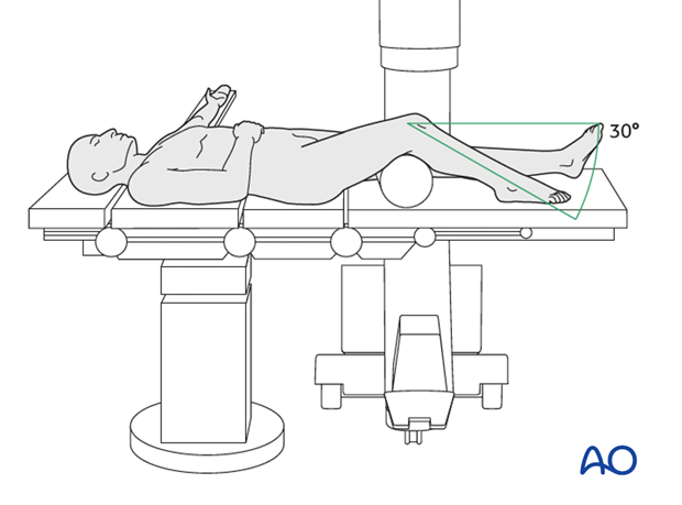 Patient and x-ray positioning