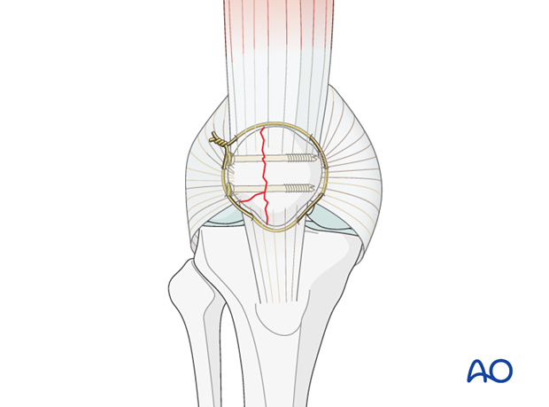 partial articular lateral sagittal fragmentary fracture