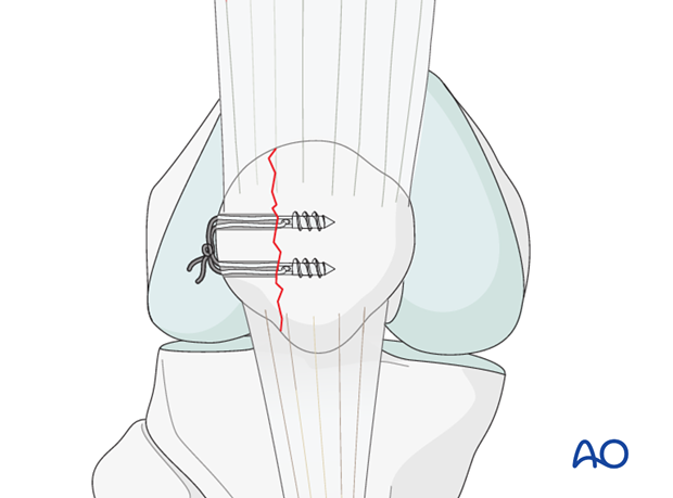partial articular lateral sagittal simple fracture