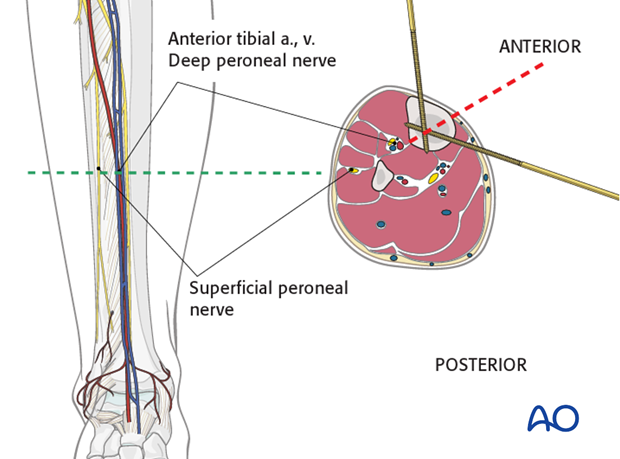 Tibial mid shaft level