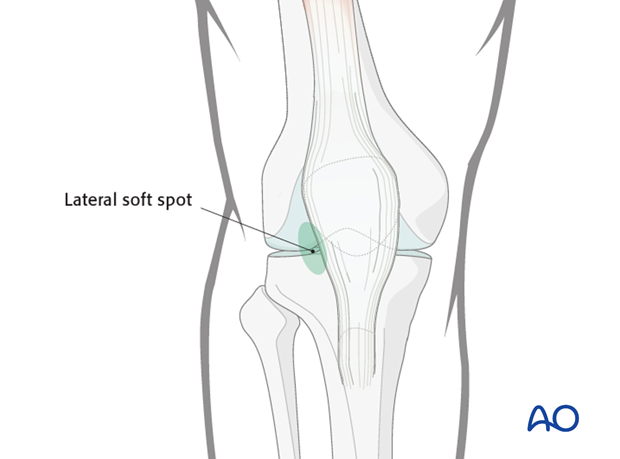 Identify the lateral soft spot adjacent to the patellar tendon