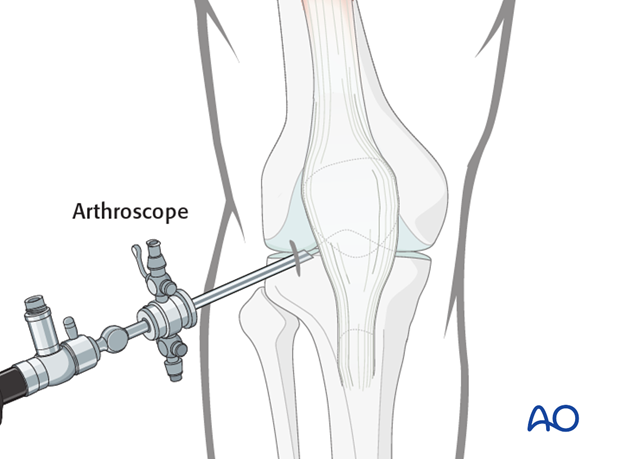 Make a 5 mm stab incision and insert the arthroscopic shaft carefully, so as not to damage the intraarticular cartilage surface.