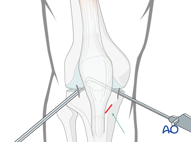 arthroscopic approach to the knee