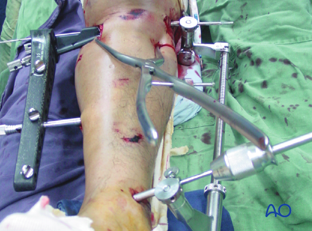 Image showing the clamp in place together with the LISS insertion handle and a distractor.