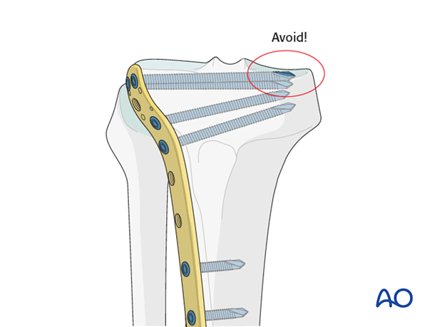 When inserting screws from lateral to medial this fact must be taken into consideration.