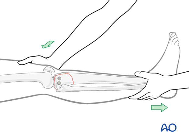 Reduce the metaphyseal component by pulling on the leg and restore axial alignment, length, and rotation.