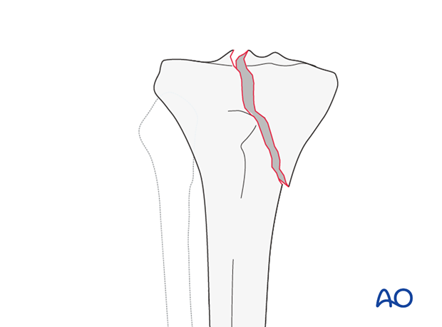 Oblique split, involving the tibial spines and one of the tibial plateaus (AO/OTA 41B1.3)
