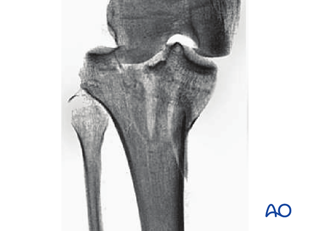 Oblique split depression, involving the tibial spines and one of the surfaces (AO/OTA 41B3.3)