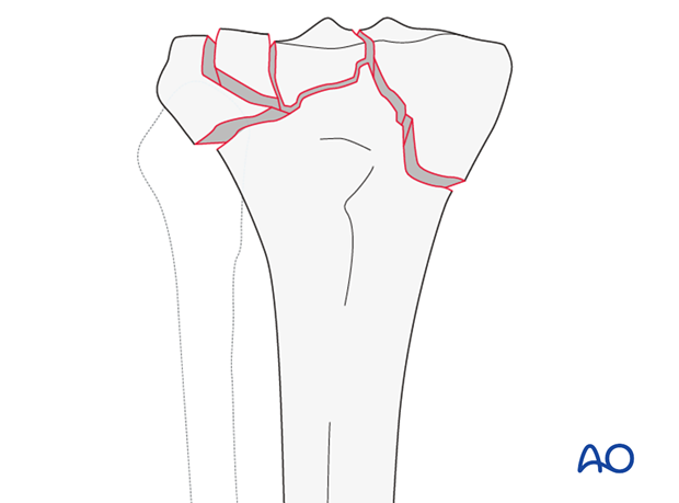 Complete articular fracture, fragmentary articular (AO/OTA 41C3)