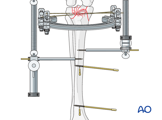 Choose safe locations for pin insertion.