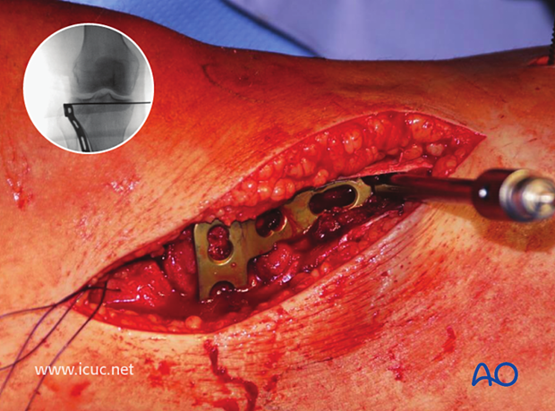A lateral tibial plateau buttress plate is carefully inserted at the correct height.