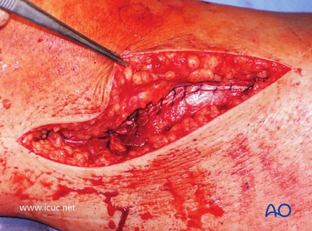 The anterior compartment may be closed if compartment syndrome is not a threat.