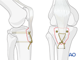 extraarticular fracture avulsion of tibial tubercle