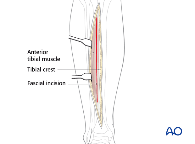 The fascia is incised just lateral to the tibial crest.