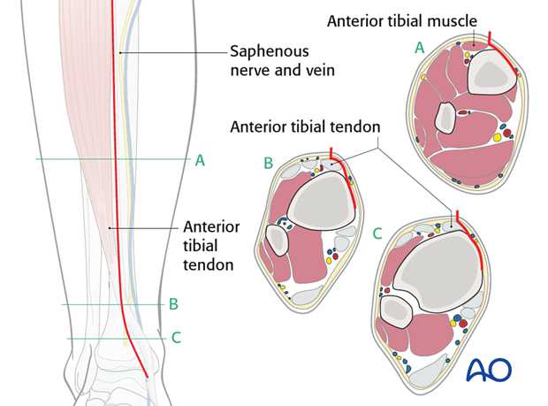 Take care not to compromise the great saphenous vein and nerve.