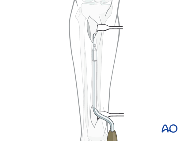 Prepare a tunnel between the anterior tibial muscle and the periosteum.