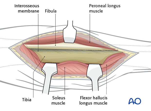 At the conclusion of the dissection the surgeon should have access to the posterior aspects of both the tibia and the fibula.