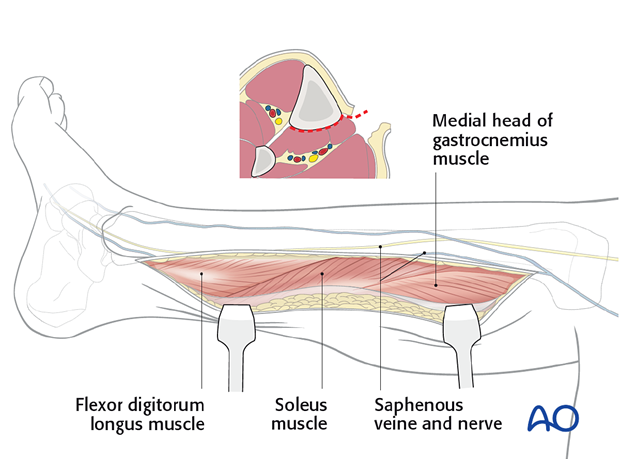 The fascia is then incised in line with the skin incision and the superficial and deep posterior compartments are mobilized.