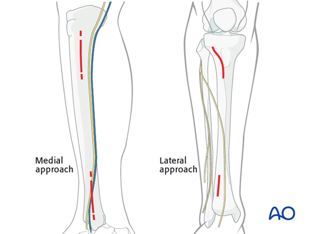 Medial and lateral minimally invasive approaches