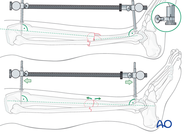 The distractor or external fixator pins can be adjusted to correct the angular deformity.