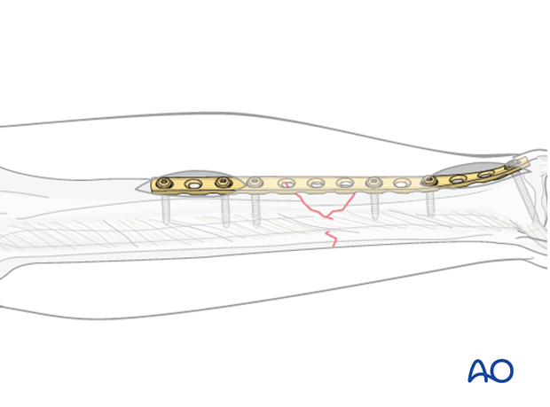 Insert the remaining proximal and distal screws, using at least two screws on each side of the bridged fracture zone.