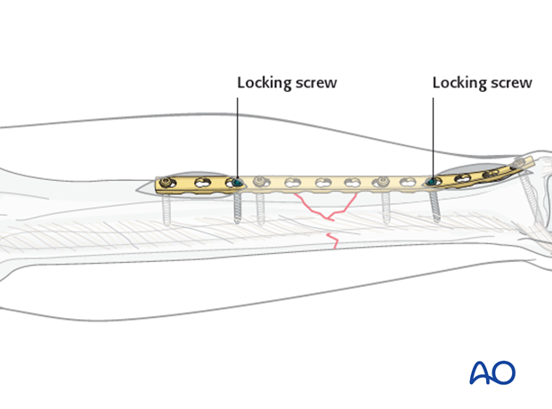 If a locking plate is used, placing the locking screws directly adjacent to the bridged zone should be avoided.