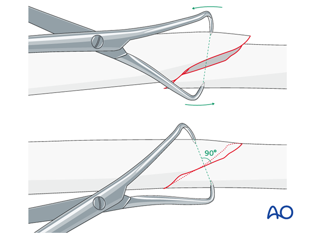 When possible, reduction forceps are a valuable aid.
