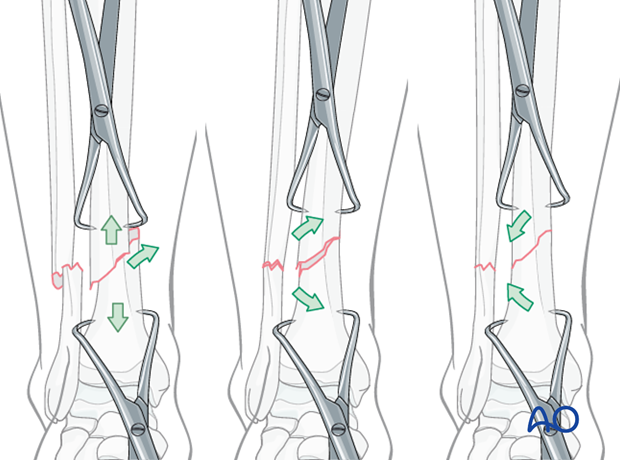 With transverse fractures, the forceps cannot be applied to compress the fracture surfaces...