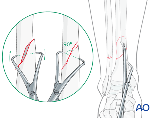 Final reduction of the fracture is done with pointed reduction forceps placed through two stab incisions.