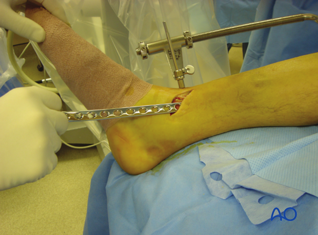 An incision is made over the distal tibia and the plate is slid under the subcutaneous tissues.