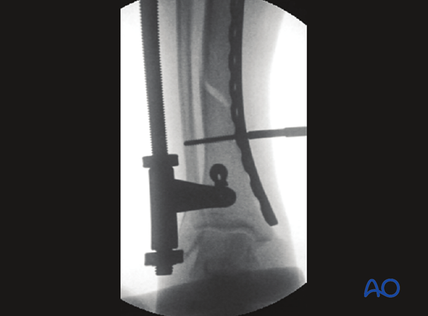 The initial screw must engage both cortices for secure purchase before it is tightened to reduce the fracture.