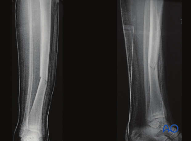 Case example of an A2 tibial shaft fracture