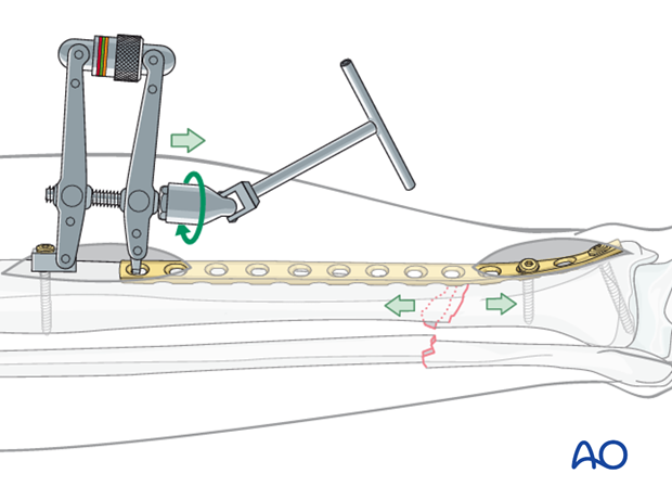 To use the ATD, in distraction mode, a precontoured plate is applied to one of the main fracture fragments.