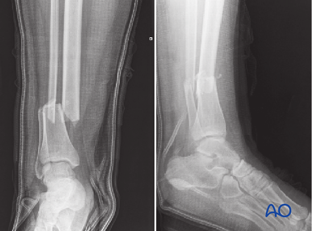 A3 (transverse, 2-part) tibial fracture