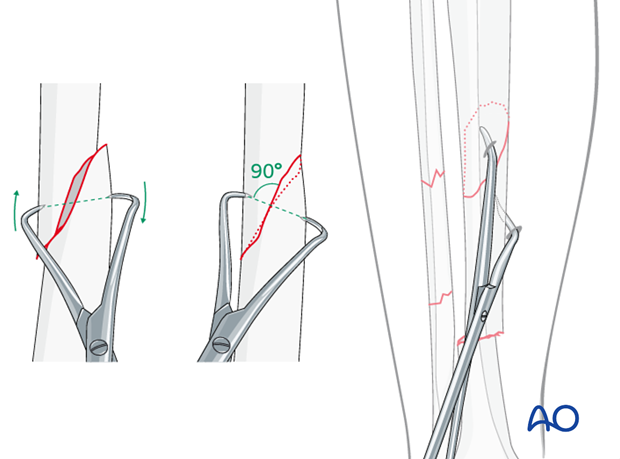 Final reduction may be possible with percutaneously applied pointed reduction forceps.